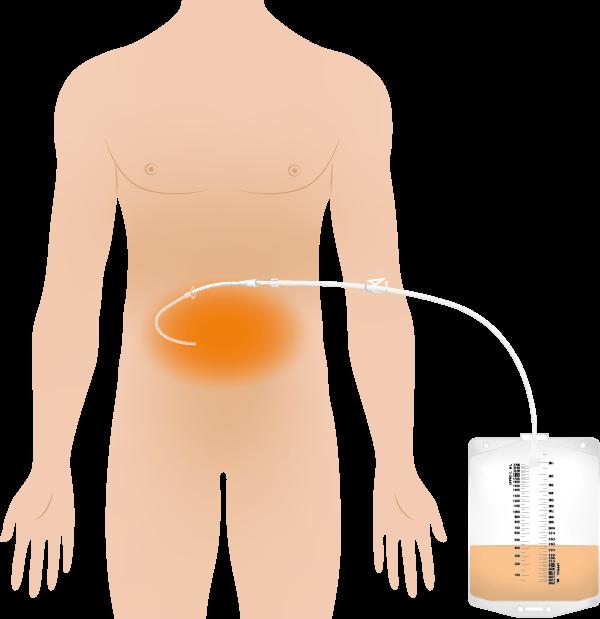 Illustration Aszites mit Schwerkraftreservoir