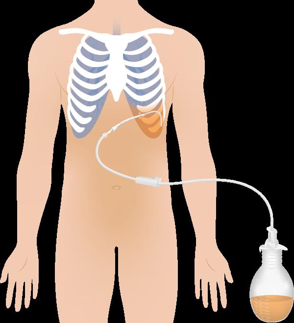 Illustration Pleuraerguss mit Vakuumflasche