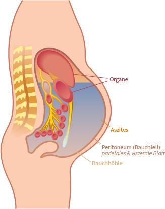 Illustration des Bauchs bei Aszites